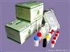 人表面活性物质关联蛋白D(SPD)检测试剂盒